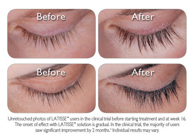 Latisse Before and After